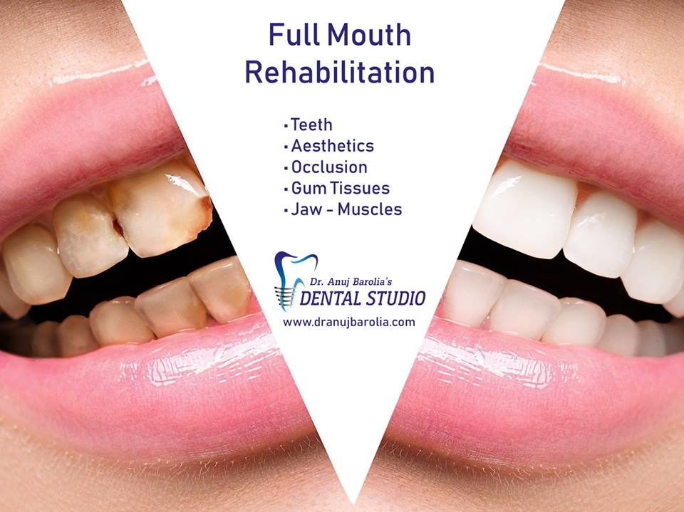 Full Mouth Rehabilitation-Dr Anuj Barolia