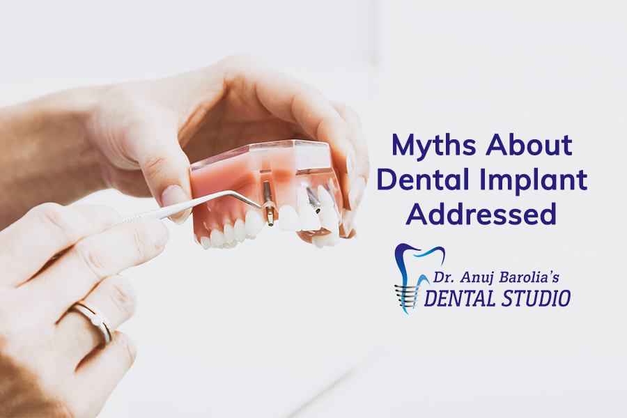 Myths About Dental Implants Address-Dr Anuj Barolia-Dental Studio-in-Vadodara