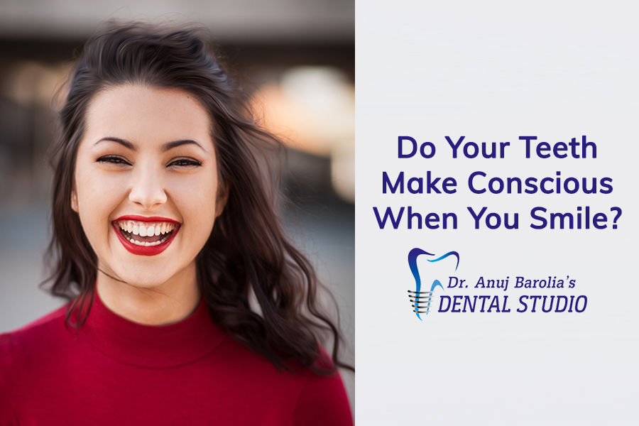 Smile Designing Treatment-Dr Anuj Barolia-Dental Studio in Vadodara
