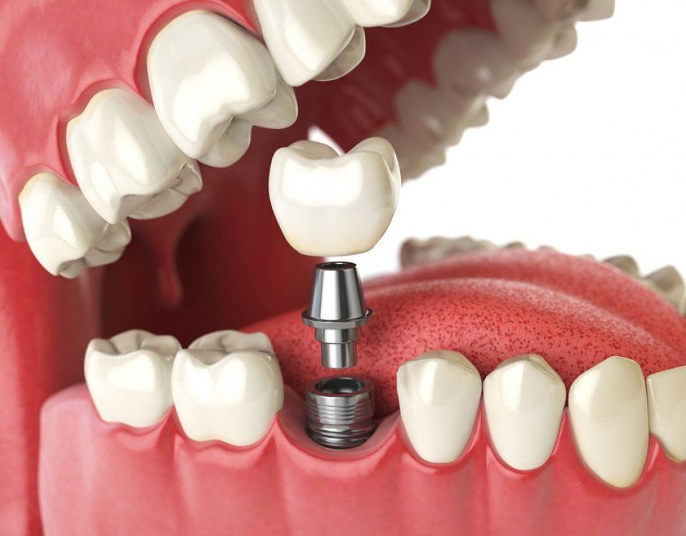 Dental Implant in Vadodara